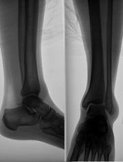 1002813_x-ray_image_of_the_leg-2-.jpg