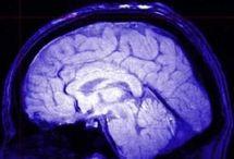 tumore_cervello.jpg