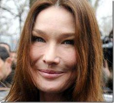 Carla-Bruni-Botox.jpg