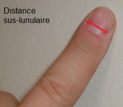 distance_sus_lunulaire.png