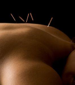 l-acupuncture-reduirait-bel-et-bien-le-stress_3903-copie-1.jpg
