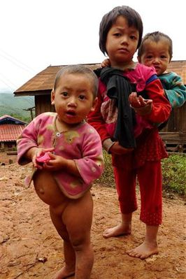 malnutrition-village-akha--1---Small-.JPG