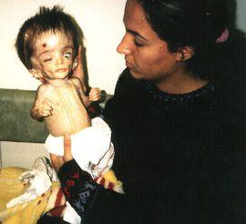 iraqi-child-victim-of-depleted-uranium.j