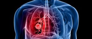 cancer du poumon l 39 espoir reste de mise 1 re partie le blog lintegral. Black Bedroom Furniture Sets. Home Design Ideas