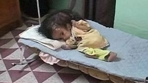baby-fatimah-ahmed-born-with-two-heads-in-fallujah.jpe.jpeg