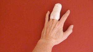 doigt-fracture.JPG