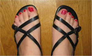 ongles-pieds-vernis.jpg