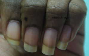 ongles-courts.JPG