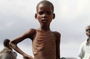 57657_a-somali-displaced-boy-stands-near-a-food-distributio.jpg