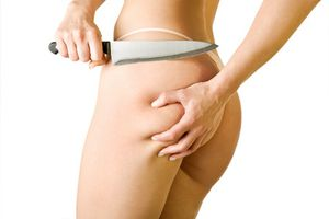 massage-anti-cellulite-Fotolia 7779574 XS