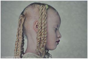 PhotoQuai 2013 Bresil Albinos 2