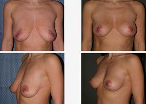 10614 Dr. Placik Breast Lift Chicago, Illinois Arlington He
