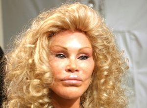 visage-botox.jpg