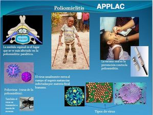 poliomielitis-APPLAC.jpg