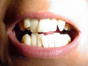 25 vingt six mois retrait du bas orthodontie adulte. Black Bedroom Furniture Sets. Home Design Ideas