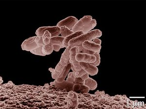 800px-E_coli_at_10000x.jpg