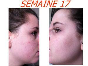 Tetracycline acné avis - Can i take zoloft 2 times a day
