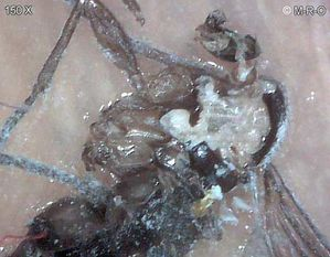morgellons-insect10