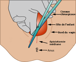 Copie_de_Medio-lateral-episiotomy.png