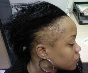 chute-de-cheveux2.jpg