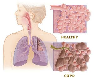 Copd_versus_healthy_lung.jpg