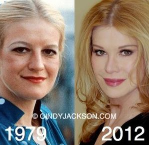 315cindy_jackson_before_and_after.jpg