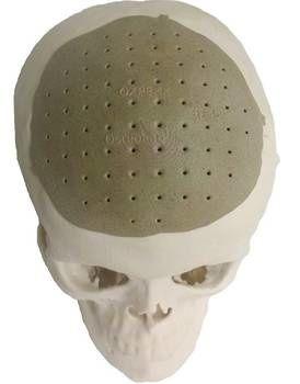 RTEmagicC_implant-cranien-PEKK-impression-3D-2_Oxford_Perfo.jpg