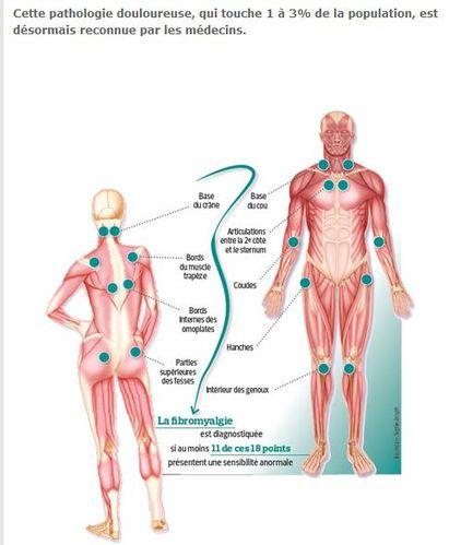 fibromyalgie-reconnue-par-les-medecins-2011.JPG