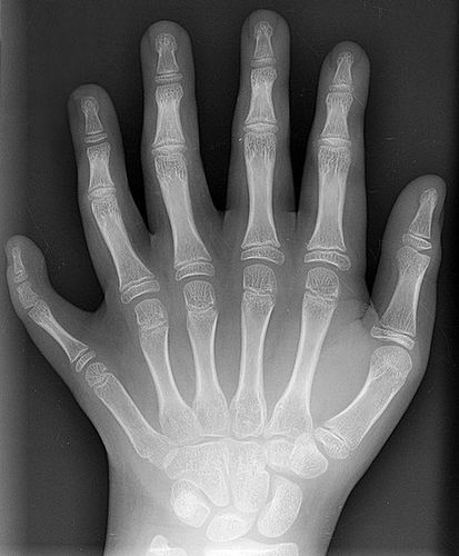 496px-Polydactyly_01_Lhand_AP.jpg