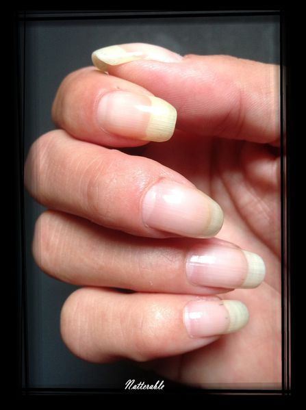 ongles 185