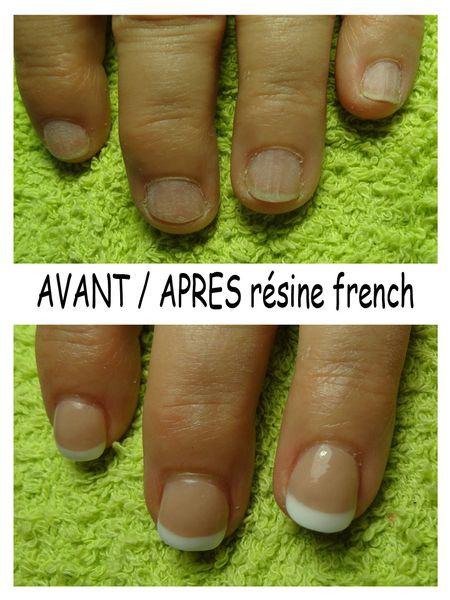 avantapres_resine_french.jpg