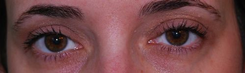 Eyes-of-the-day-6.JPG
