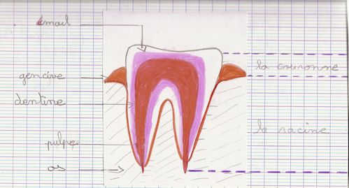 dents.jpg