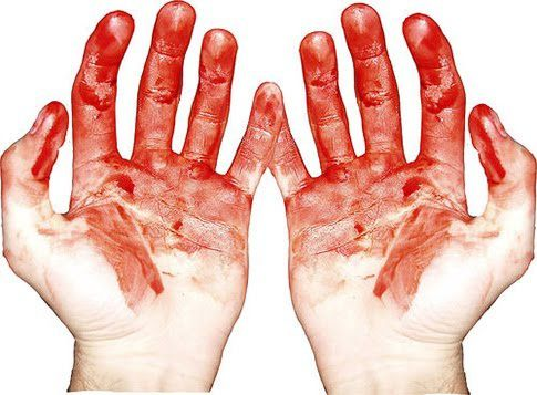 7b0fd_blood_hands.jpg