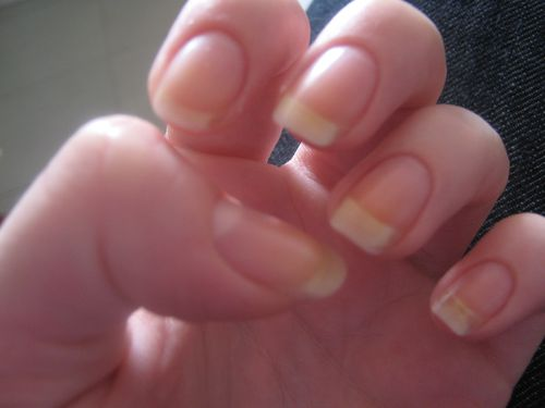 ongles 0812