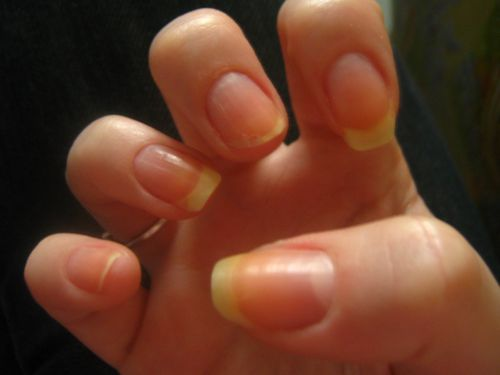 ongles 1109