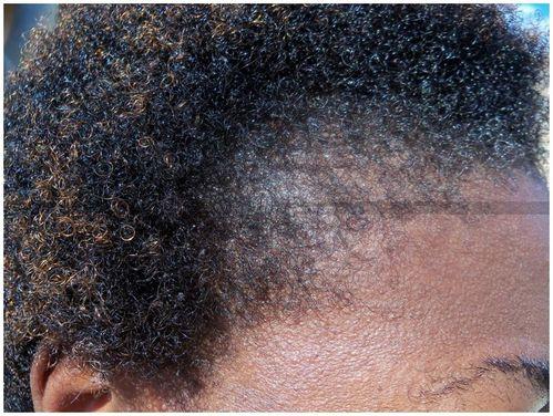 Alopecie.jpg