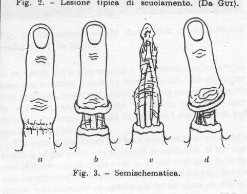 Les adaptations pour laugmentation penisa