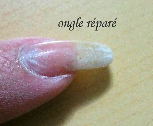 ongle-repare.jpg