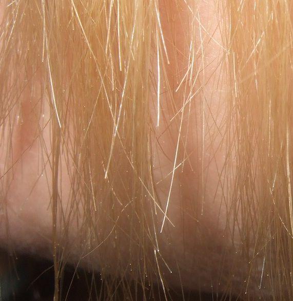 Si tombent les cheveux de pour le stress peuvent i