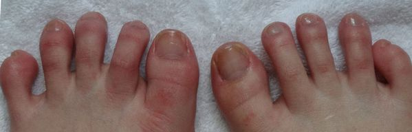 routine soins pieds 017