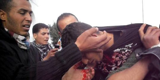 un-manifestant-blesse-apres-des-affrontements.jpg