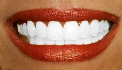 dents-blanches.jpg