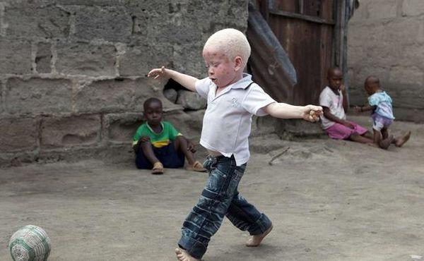 yusufu-enfant-albinos-dar-salam-tanzanie-2010-1625217-616x3.jpg