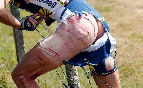 cycliste-tour-de-france-barbeles-sang.jpg