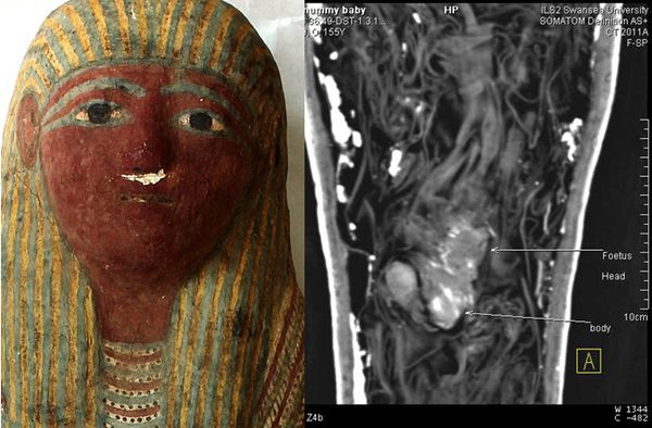 dnews-files-2014-05-ancient-Egyptian-mummified-foetus-14051.jpg