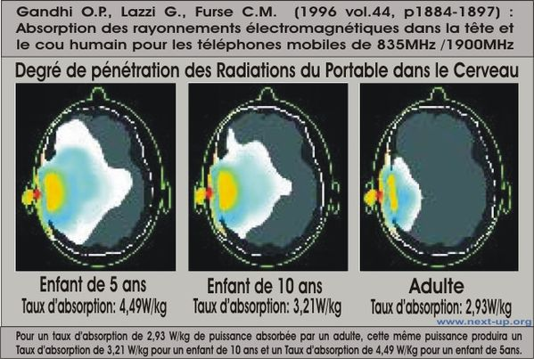 imagerie_irradiation_cerveau_portable-copie-1.jpg