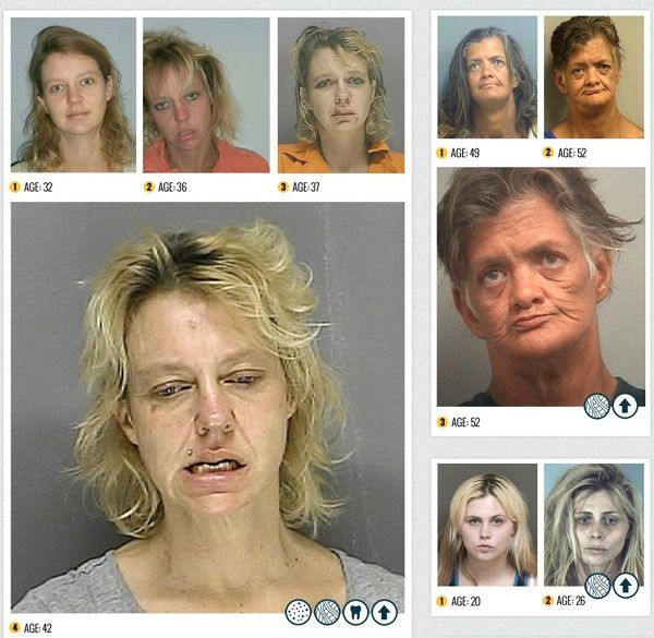 les-ravages-de-la-methamphetamine-4.jpg