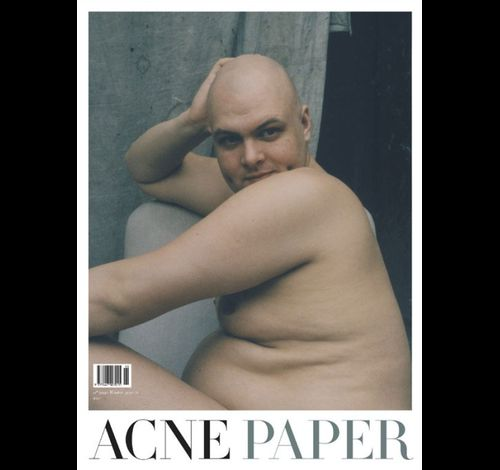 AcnePaper-