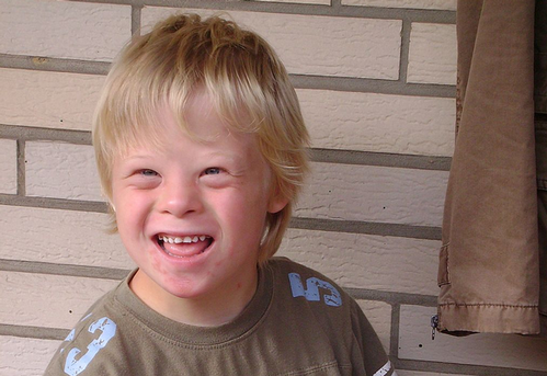 Boy_with_Down_syndrome.png